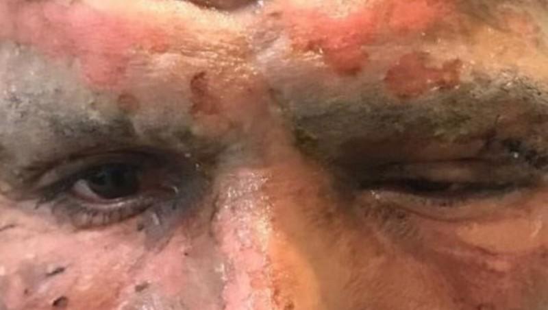 Así quedó el rostro de Lucas Viatri tras sufrir un accidente con pirotecnia
