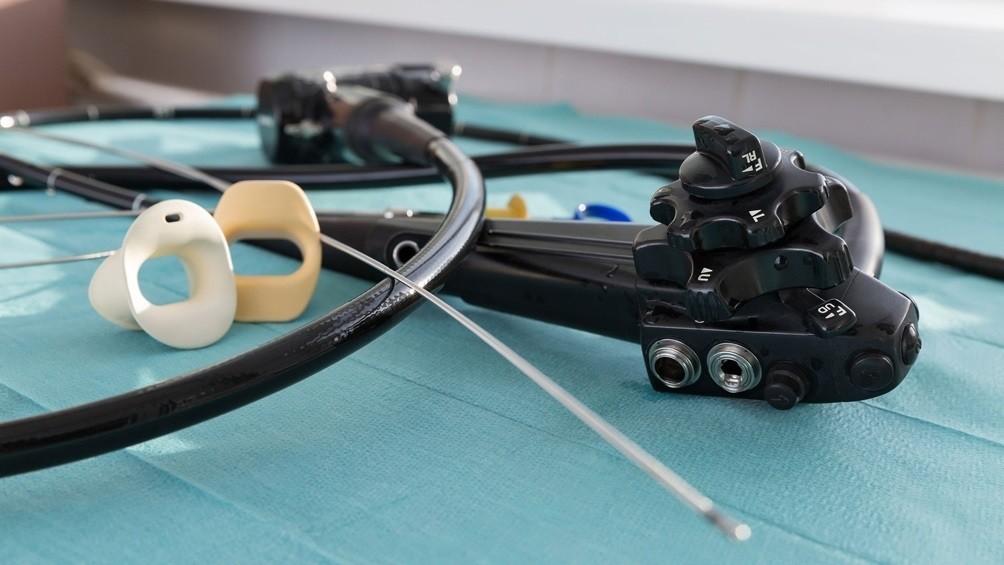 Endoscopia: la posibilidad de muerte es de 0,0001%