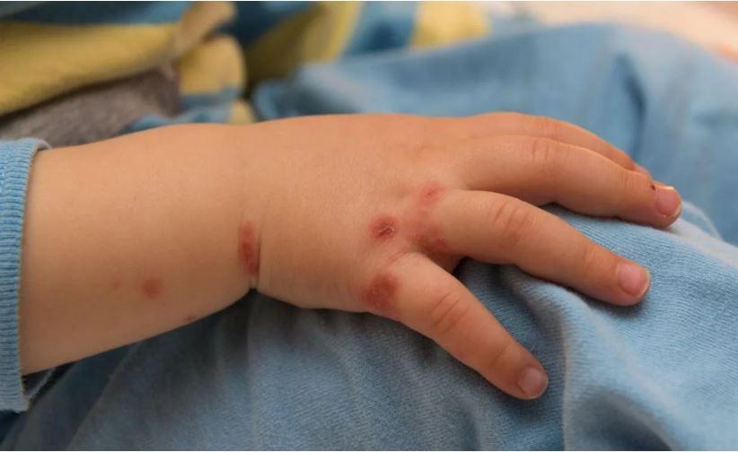"""El sentido descargo de una madre que no vacunó de varicela a su hijo: """"Nos arrepentiremos siem-pre"""""""