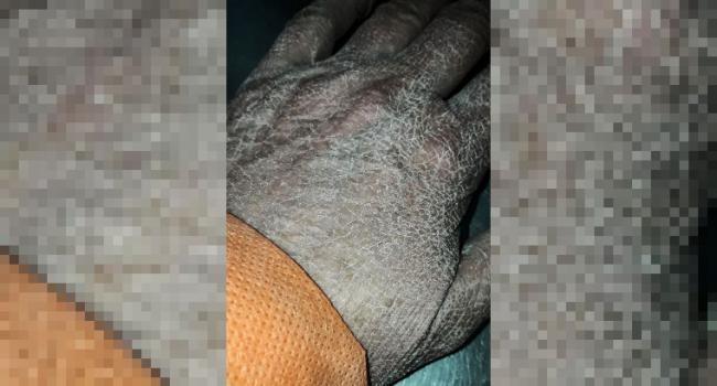 Margarita: se viralizó la imagen de la mano de una enfermera luego de varias horas de trabajo