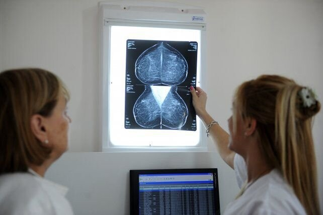 ¿En qué casos se puede heredar el cáncer de mama?